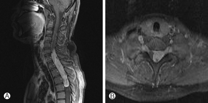 Neurospine It is one of the modifications of pia mater. neurospine